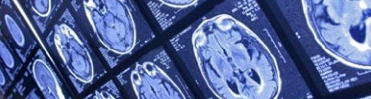 33069-brain-scan